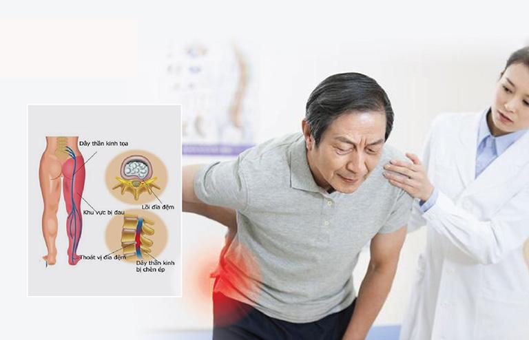 thông tin về đau thần kinh tọa